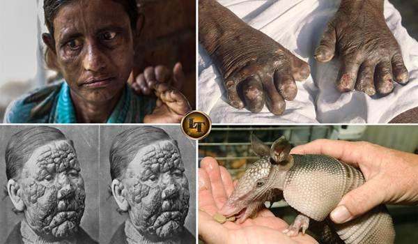 Inilah 5 Fakta Ngeri Penyakit Leprosy Yang Telah Menginfeksi Indonesia