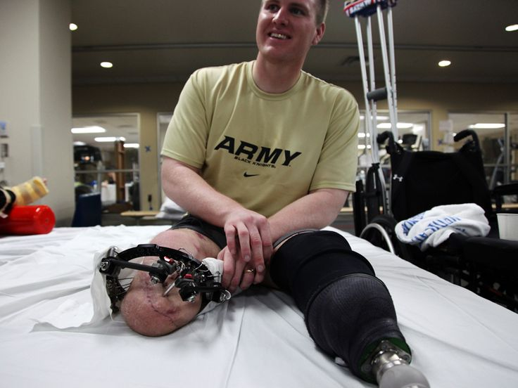 An Army combat double amputee in the physical therapy room ...