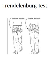 36 best images about special test on Pinterest | Gymnasts, Knee ...