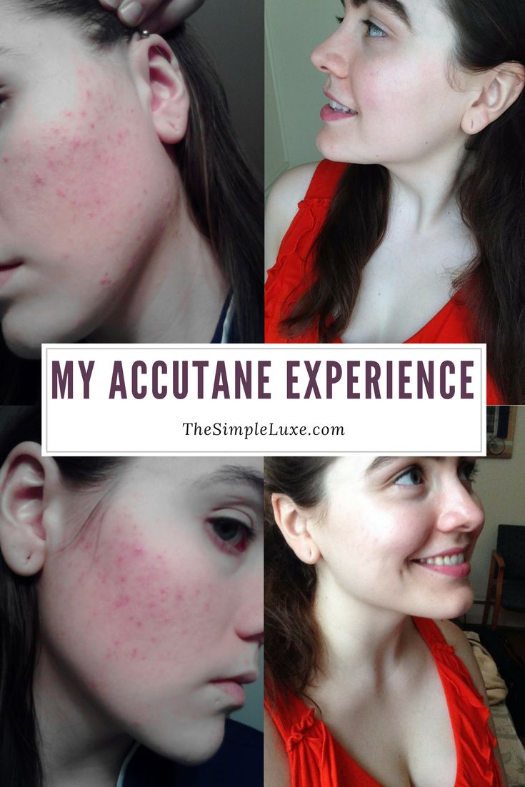 My Experience Curing Acne with Isotretinoin / Accutane. Accutane Before and After.