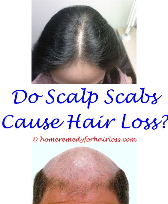 cmf treatment and hair loss - clamira caused hair loss what is another hormone.best drugstore shampoos for hair loss can too much protein cause hair loss in dogs loss of hair with methotrexate 6036769686