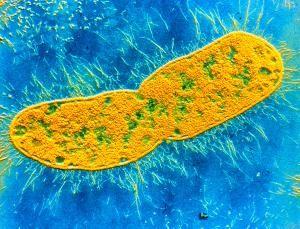 Antibiotic-resistant superbugs now a global epidemic - health - 30 April 2014 - New Scientist