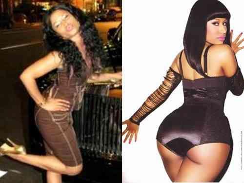 Nicki Minaj Butt Implants Celebrity Butt Implants