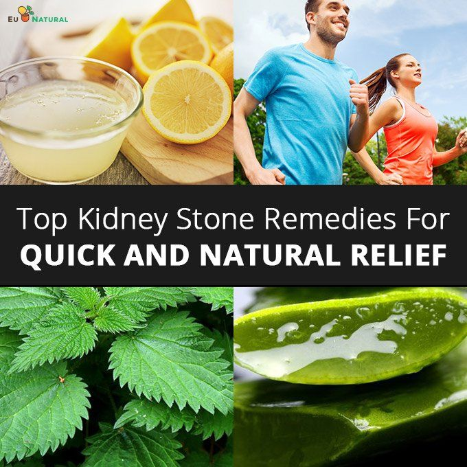 10 Top Kidney Stone Remedies For Quick And Natural Relief Kidney Stones Remedy Natural Relief Natural Cures