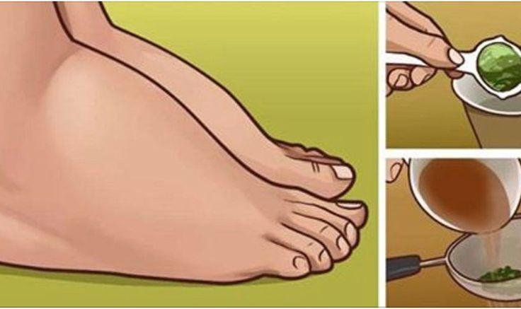 O acúmulo excessivo de líquido nos tecidos do corpo chama-se edema. A causa desse problema pode ser: – Gravidez – Pressão arterial elevada – Anomalia nos rins Embora o edema possa atingir qualquer parte do corpo, as mais comuns são os pés, tornozelos, as pernas, os braços e as mãos. Nem sempre essa situação é …