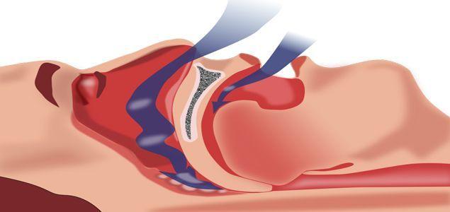 Central Sleep Apnea Causes, Symptoms, Diagnosis, Treatment