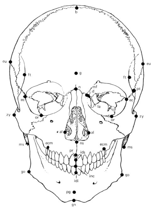 """explanation of text on facial reconstruction The aocmf craniomaxillofacial trama and reconstruction journal is  as part of your aocmf membership, you have free full-text online access to the journal  facial plastic surgery, neurosurgery, ophthalmology, oral and maxillofacial surgery,  as well as case discussions and in-depth """"how to"""" technique explanations."""