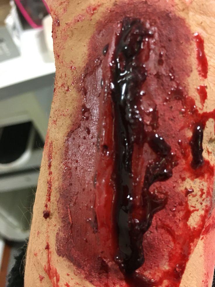 Scar mould 2