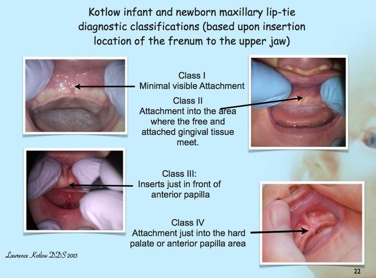 Üst dudak bağları nasıl sınıflandırılır? - Dudak bağları nasıl sınıflandırılır? - Dr.Kotlow Üst Dudak Bağı Sınıflandırma Sistemi - Sınıf 1 üst dudak bağı tanımı - Sınıf 2 üst dudak bağı tanımı - Sınıf 3 üst dudak bağı tanımı - Sınıf 4 üst dudak bağı tanımı - Dudak bağları anatomik olarak nasıl sınıflandırılır? - Dudak bağına bağlı üst dudak kısıtlanması