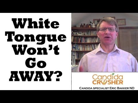 Directorio Odontológico: ORAL HEALTH: My White Tongue Won't Go Away What can I Do?