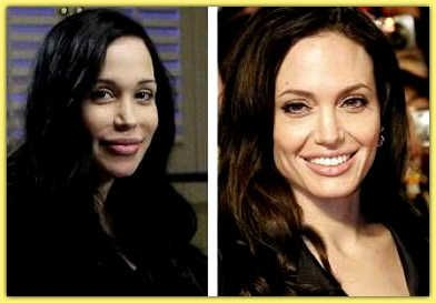 172 Best Images About Plastic Surgery Celebrities On
