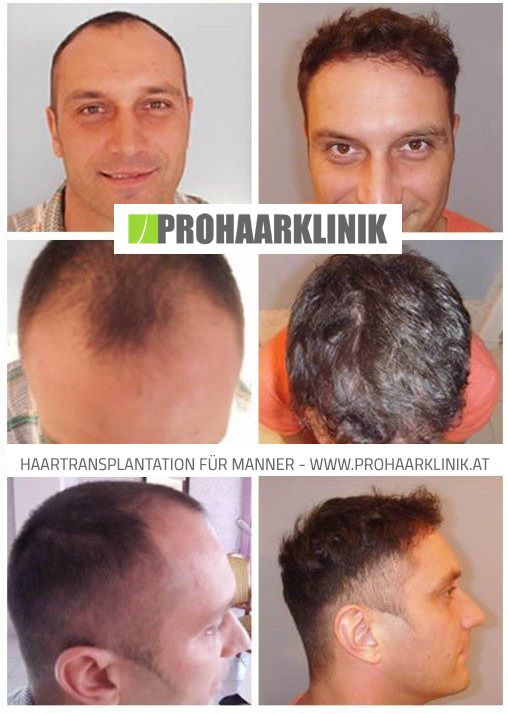 Haarverpflanzung Vorher Nachher  http://www.prohaarklinik.at/haartransplantation-vorher-nachher-bilder/