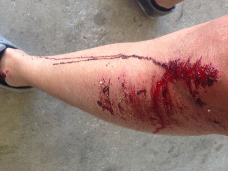 19 best images about wounds and scars on pinterest scars