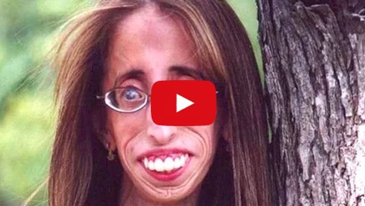 Bullies Called Her 'World's Ugliest Woman' And Now She Is An Inspiration! - Must Watch Video