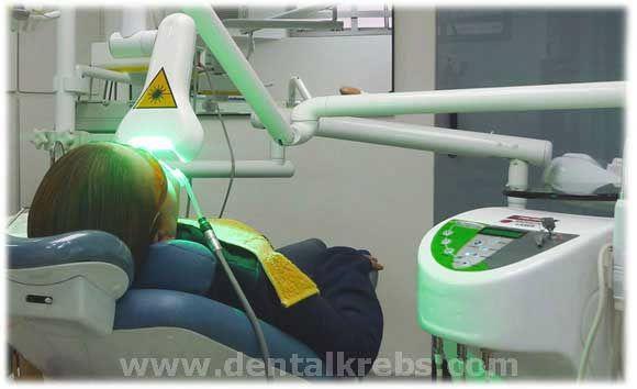 Sistema Led Laser para el Blanqueamiento Dental, mas rapido y eficas