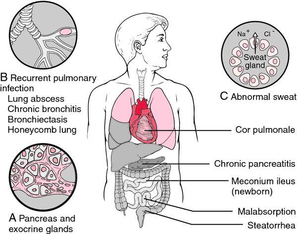 cysticfibrosis #askdoctorhansen | Cystic Fibrosis | Cystic fibrosis