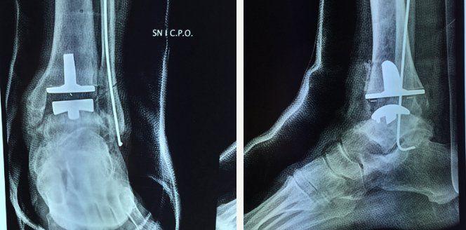 Intervento chirurgico protesi di caviglia Intervento chirurgico di protesi di caviglia L'osteoartrite (o osteoartrosi) si verifica qu intervento caviglia protesi caviglia