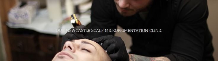 Newcastle scalp micropigmentation treatment centre