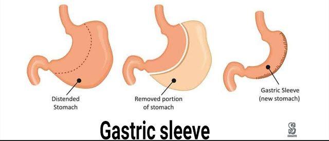 قص المعدة Gastric Sleeve او تكميم المعدة هي نوع آخر من جراحات السمنة التي يلجأ إليها في حال فشل الحميات الغذائية في إنقاص Gastric Sleeve How To Remove Letters
