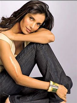 (Padma Lakshmi - scar on her right arm due to a car crash at age 14)