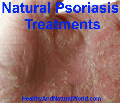 Natural Psoriasis Treatments. Everyone knows someone  who may be suffering with this condition