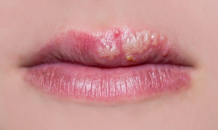 Muchas hermosas me han preguntado por remedios para los fuegos labiales... porque siempre salen en los días más importantes y llenos de estrés, se vuelven resistentes a las cremas y nos hacen avergonzar. Y como yo sé que todas amamos tener unos labios suaves y hermosos para sonreír tranquilas, te vo