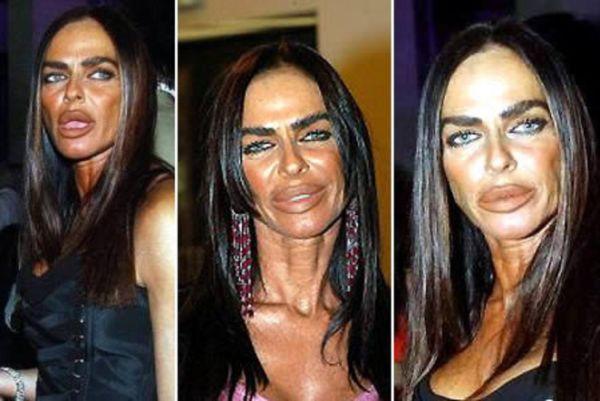 Michaela Romanini plastic surgery went wrong
