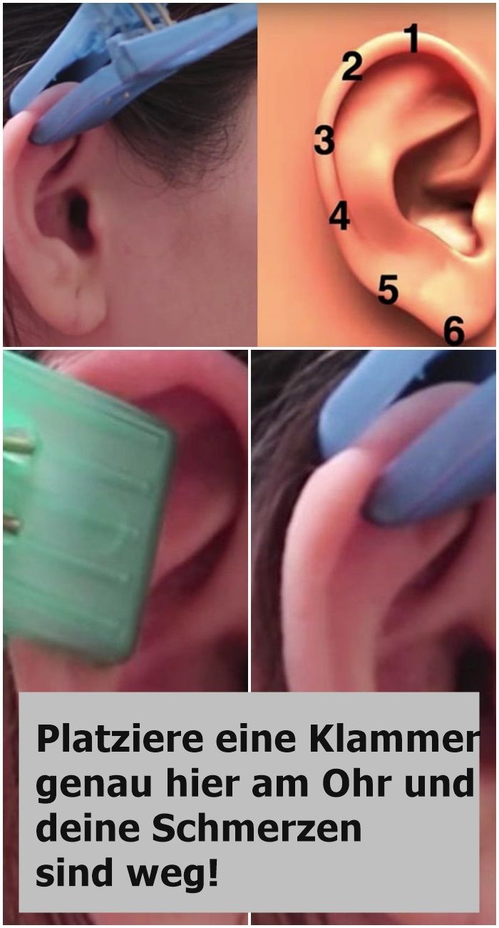 Nadeln in den Ohren, um Gewicht zu verlieren