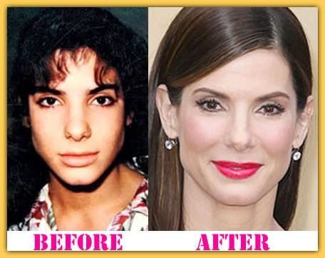 ...  keep in touch with this page to get Sandra Bullock plastic surgery before and after photos, reasons, results and doctor name who have done her surgery. Description from beforeandafterceleb.com. I searched for this on bing.com/images