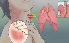Os 18 Sintomas de Alerta Precoce de Câncer de Pulmão nas Mulheres