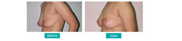 Enhance Your Femininity At The Best Breast Reduction Clinic In Kolkata for more details visit at http://bit.ly/1nUHNTp
