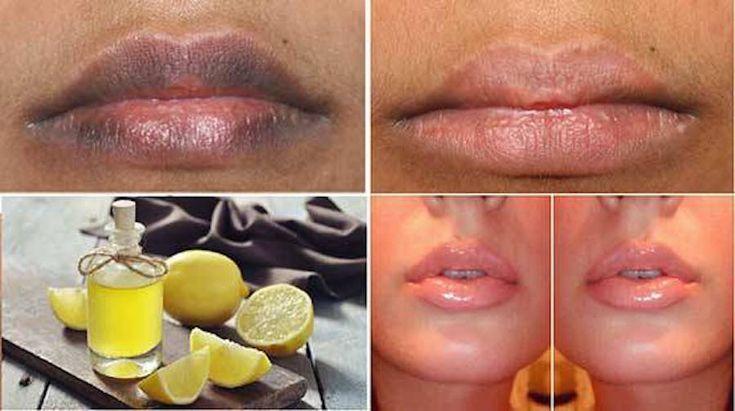 Lábios são, principalmente para as mulheres, símbolo de beleza e sensualidade.No entanto, a preocupação com o aspecto deles deve ir além da estética.Como você já deve saber, nós do Cura pela Natureza priorizamos a saúde e o bem-estar.