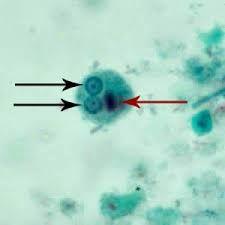 Image result for entamoeba histolytica cyst