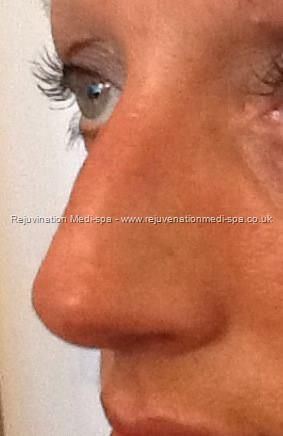 After nose reshaping using Dermal Fillers
