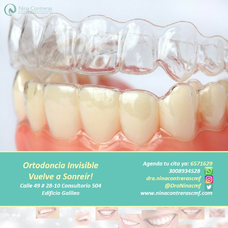 Nuestro nuevo servicio. Ortodoncia Invisible. Atrévete a generar cambios Agenda tu cita ya: 6571629 - WhatsApp: 3008934528 http://ninacontrerascmf.com/