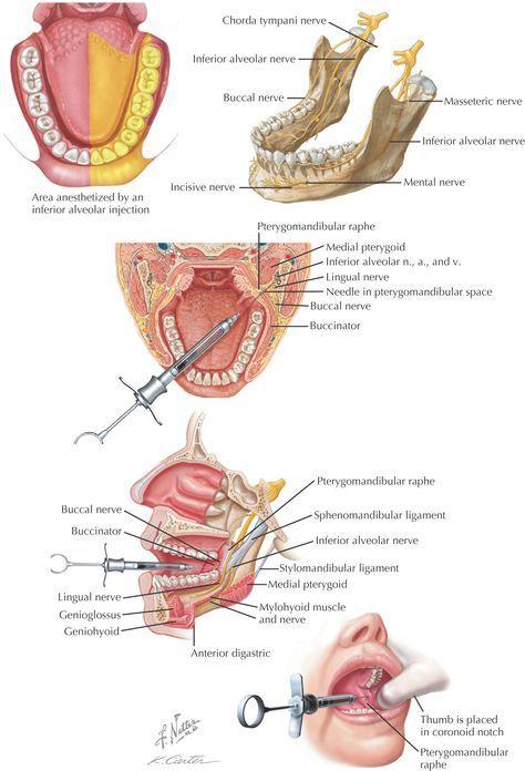#anestesia #bucodental www.clinicadentalmagallanes.com