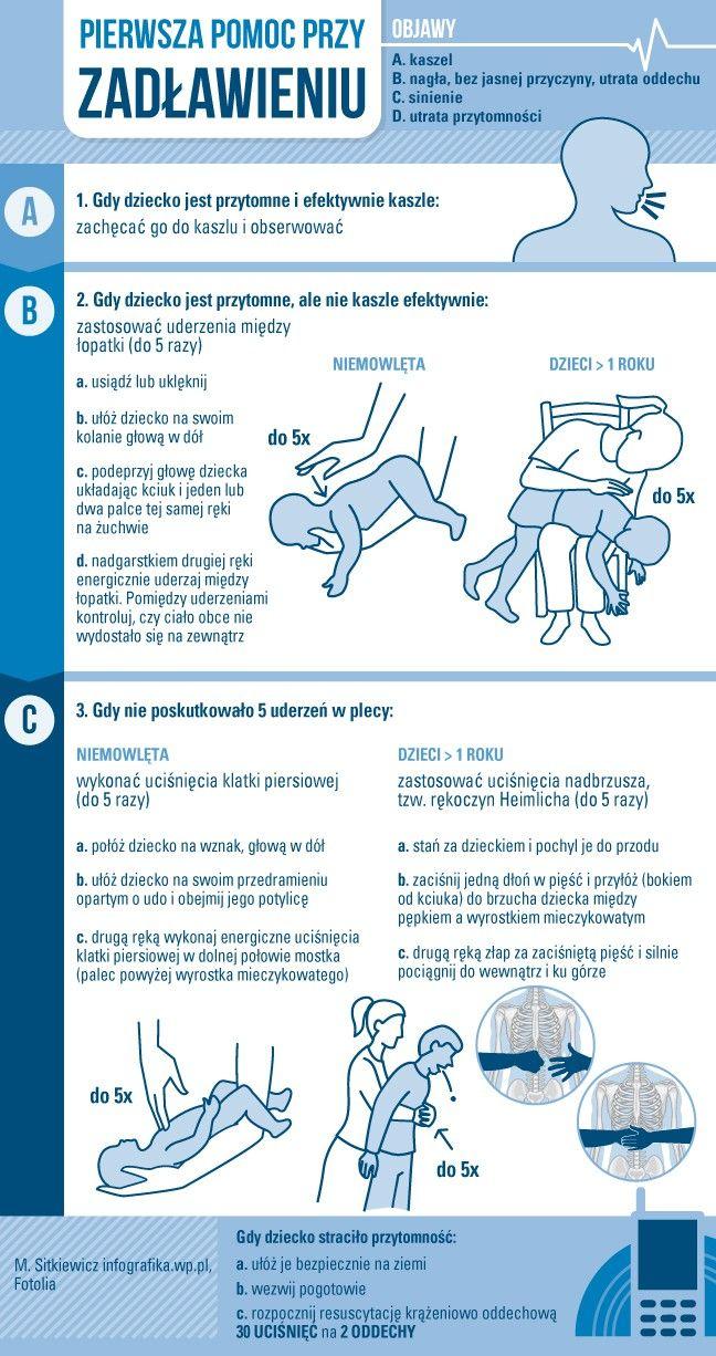 Rękoczyn Heimlicha – pierwsza pomoc przy zadławieniach