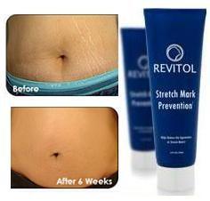 Best Stretch Mark Cream - Stretch Mark Removal