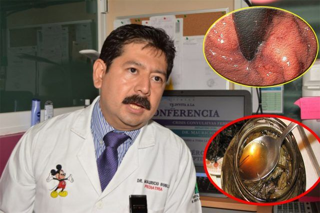 Gastroenterólogo dice !NO Aguanto Mas! y Revela la cura Final para la Gastritis, Solo con esta planta, compartelo con tus amigos – Compartelo - Todo salud