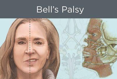 Cara Menyembuhkan Bell's Palsy - Membantu proses perbaikan kelumpuhan otot dan syaraf, meregenerasi sel yang rusak, proses penyembuhan lebih cepat, serta mampu mengembalikan fungsi sel pada otot dan syaraf dengan lebih cepat.