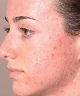 Signs and Symptoms of Acne