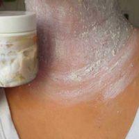 Йод + нашатырь – популярное и действенное средство. 1. Смешайте 35 г. спирта, 5 г. нашатырного спирта, 1,5 г. йода, 5 г. касторового масла. 2. Полученным раствором смазывайте кожу с нежелательными волосками 2 раза в день. Через пару дней волосы выпадают сами навсегда. Если у вас есть аллергия на какой либо ингредиент, то данный рецепт …