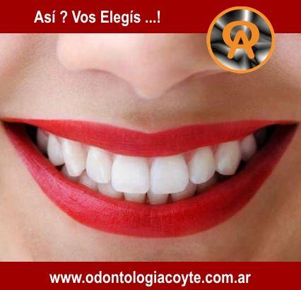 Somos una Fabrica de Sonrisas ;) Centro Odontológico Acoyte