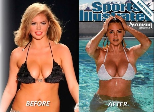 Kate Upton Before Plastic Surgery Breasts And Liposuction