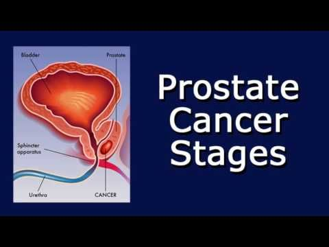 Prostate Cancer Stages - WATCH VIDEO HERE -> http://bestcancer.solutions/prostate-cancer-stages    *** prostate cancer causes and symptoms ***   Links to related videos: Prostate Cancer Causes General Prostate Cancer Survival Rate Signs Of Prostate Cancer What Is Prostate Cancer? Prostate Prostatectomy Transcript of the video: Prostate Cancer Stages I'm doing this video because one of...