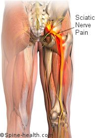 Sciatica Treatment Health Amp Exercise Sciatic Pain