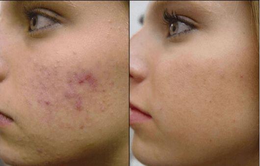 Ξεχάστε τα χημικά προϊόντα που μπορούν να αποβούν επιθετικά με το ευαίσθητο δέρμα και χρησιμοποιήστε σπιτικές μάσκες προσώπου.