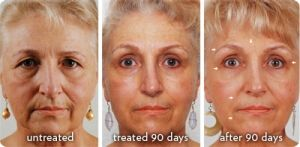 This is an amazing system and really works.  90 day money back guarantee from the company.  You start to see a difference in a week and the longer you use it the more improvements you see in your skin...Tones, Tightens, Minimizes Lines and Wrinkles and Hydrates tires skin....