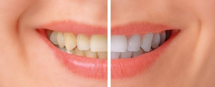 Före och efter bild på att bleka tänderna hemma. Blekskenor anpassade av tandläkare med effektivt blekmedel.