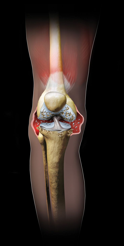 Marco Vaglieri • Artritis knee, 2005